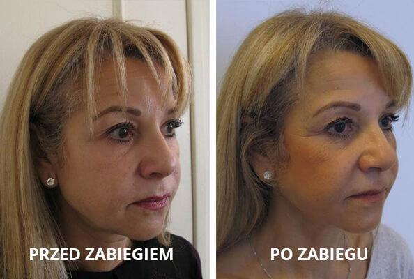 niechirurgiczny_lifting_twarzy1