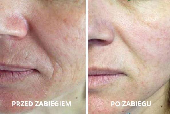 niechirurgiczny_lifting_twarzy2